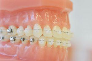 Feste Zahnspange SOS Tipps
